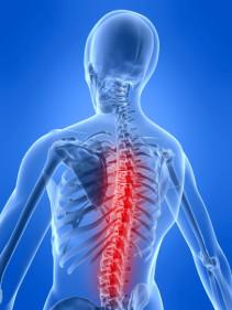 Spine wellness
