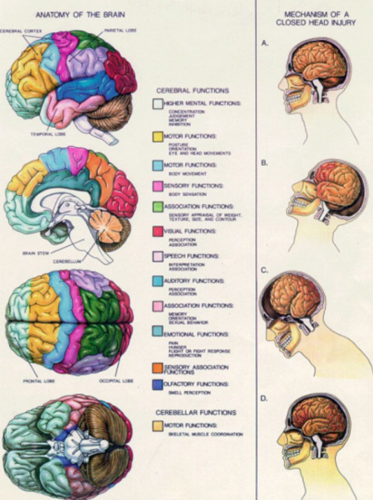post concussion syndrome, brain injury
