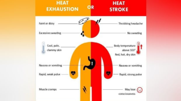 heat exhaustion or heat stroke