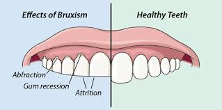 worn down teeth Bruxism grinding clenching dentist gum recession