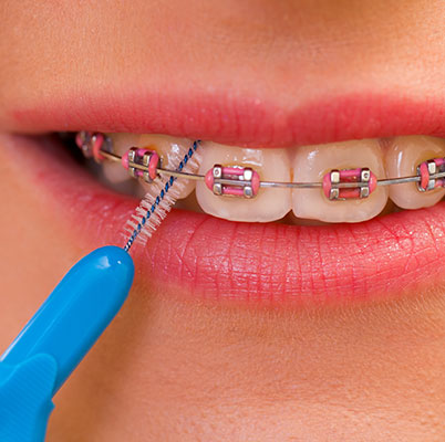 Britton Orthodontics, Burlington, brushing teeth with braces