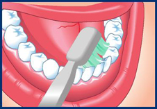 brushing properly flossing prevent gum periodontal disease