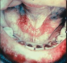 oral cancer tumour red spots white tobacco use