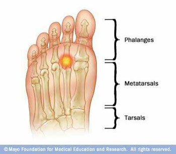 Common Condition of the Foot: Metatarsalgia