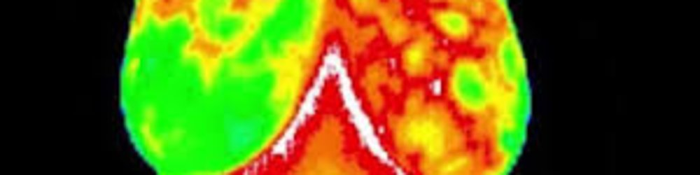 What Is Thermography and  How Can It Save Your Life?