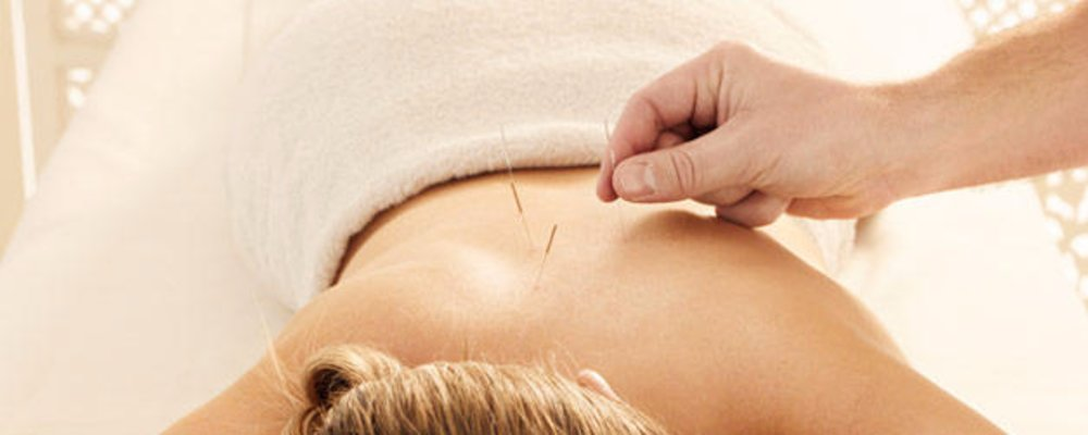 Acupuncture vs Dry needling Treatments