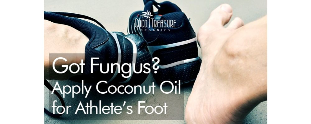 Got Fungus? Apply Coconut Oil for Athlete's Foot