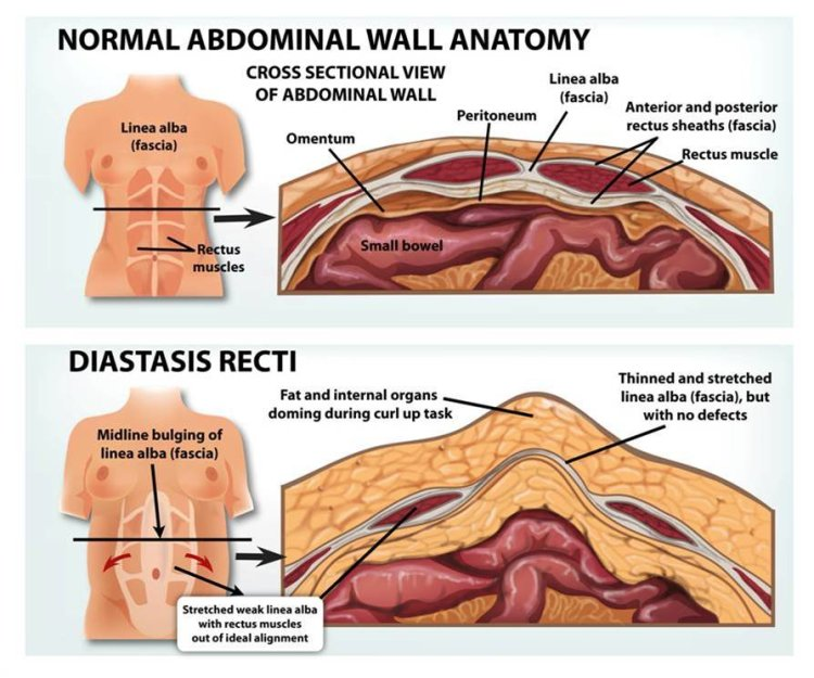 Diastasis Recti - Do's and Don'ts