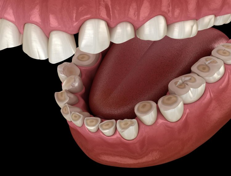 teeth erosion as a result of acid in your mouth