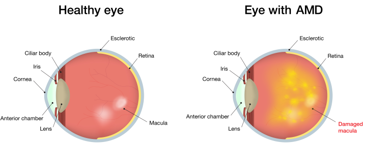healthy eye, eye with age-related macular degeneration, damages macula