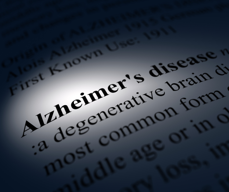 Alzheimers, dementia, Alzheimer's Disease