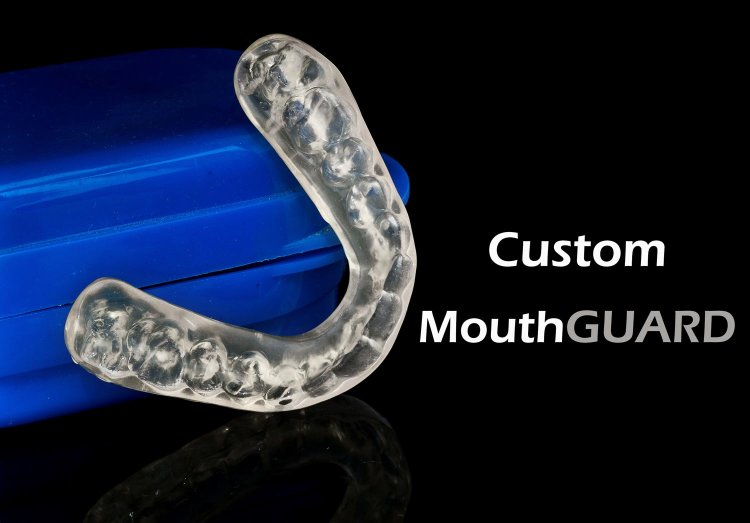 Burlington dentist - custom made mouthguard