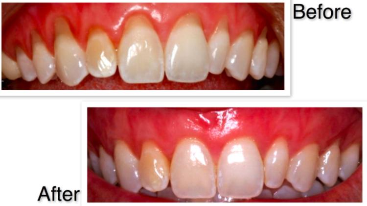 gum graft, bone graft, graft, dentistry in waterloo