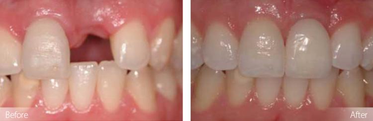 dental implants, dentures, dentistry in waterloo