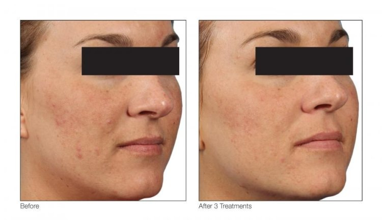 Your Perfect Skin Inc. Venus Treatments, Holiday Skin