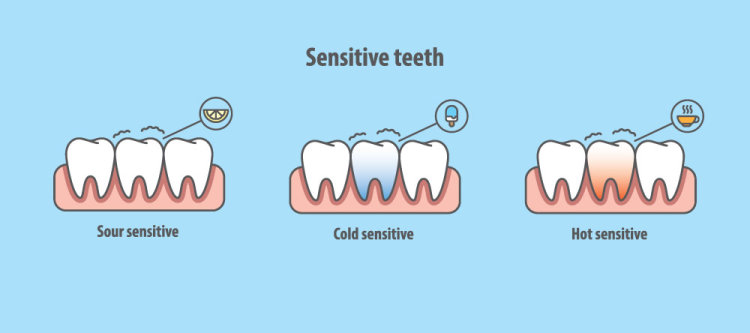 Types of sensitivity in teeth