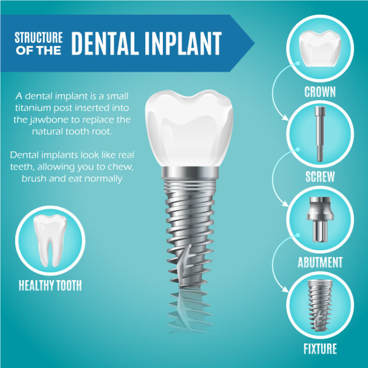 Dental Implants in Burlington