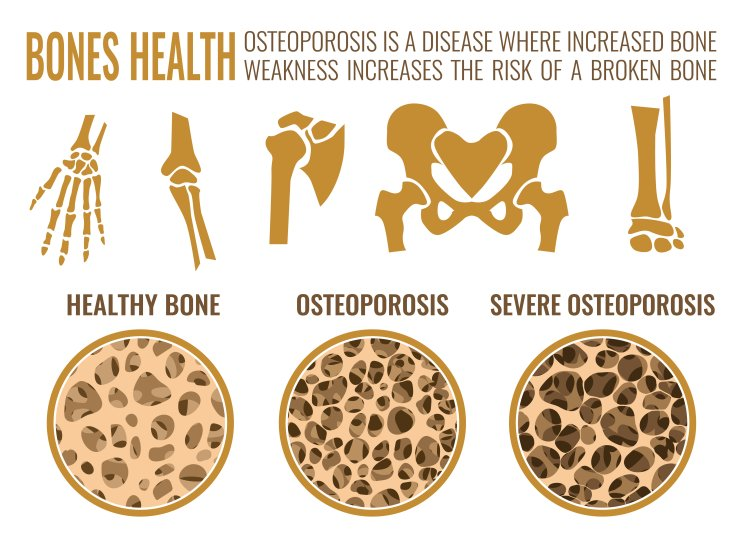 osteoporosis, back pain, brittle bone, bone disease