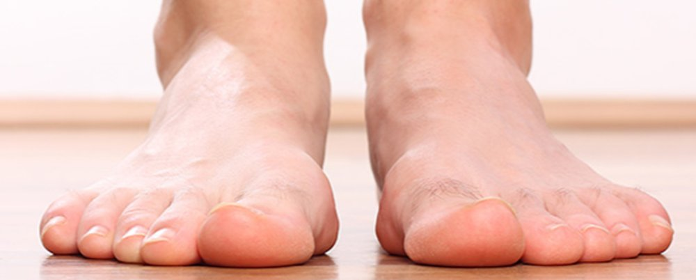 Do You Have A Flatfoot?