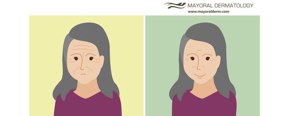 A Secret of Wrinkle Reduction