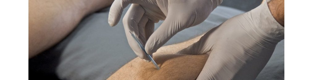 Functional Dry Needling for Pain Rehabilitation