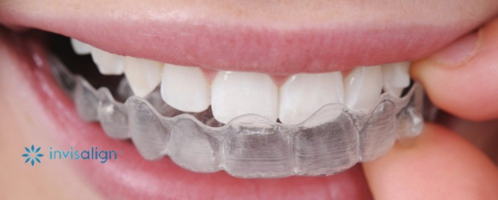 WHAT YOU NEED TO KNOW ABOUT INVISALIGN®