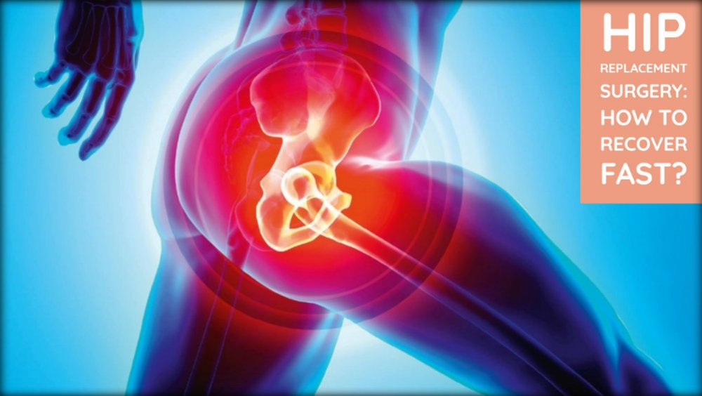 Hip Replacement Surgery: How To Recover Fast?