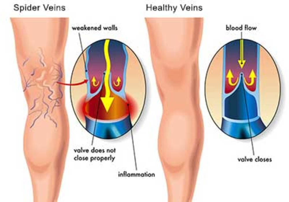 Spider Vein, Sclerotherapy Treatment