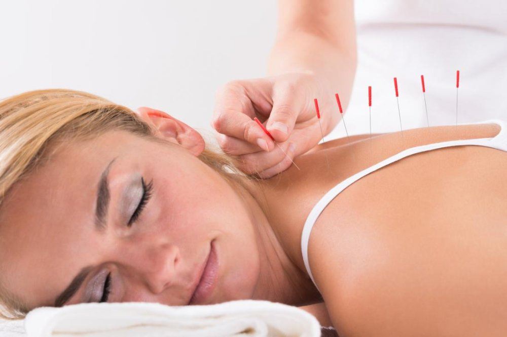 Acupuncture and How it Works