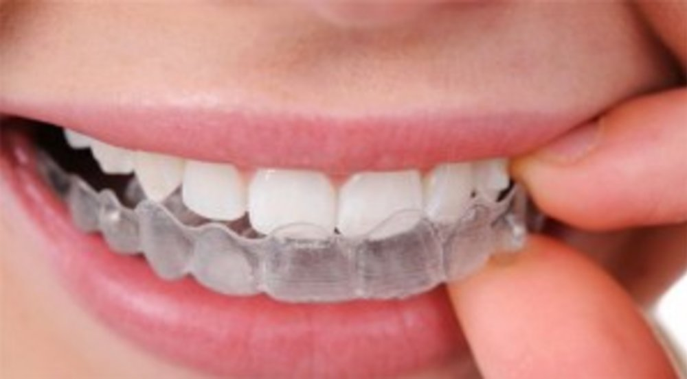 How Does Periodontal Disease Affect your Bite?