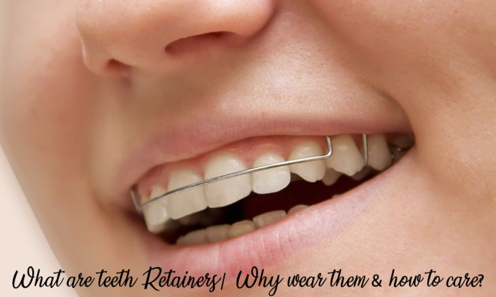 What Are Teeth Retainers| Why Wear Them & How To Care?