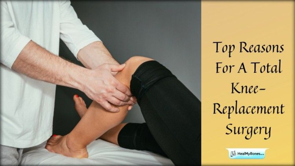 Top Reasons For A Total Knee-Replacement Surgery