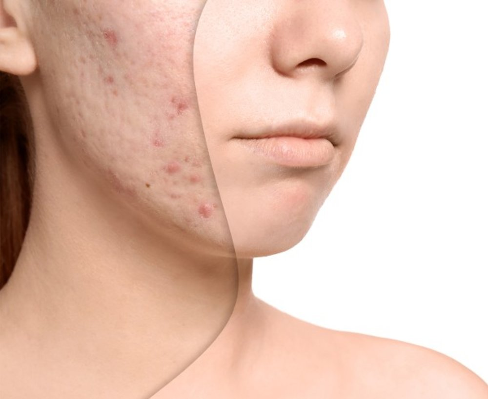 Acne and Treatments with Secret Faces