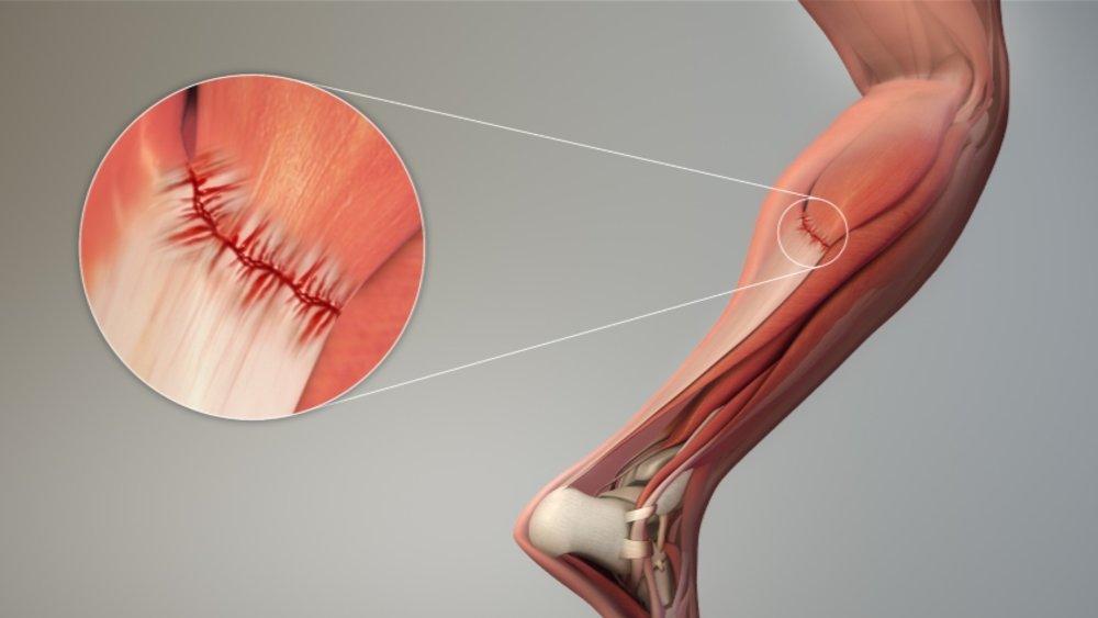 Thomas Gehrmann | Muscle Strain Treatment