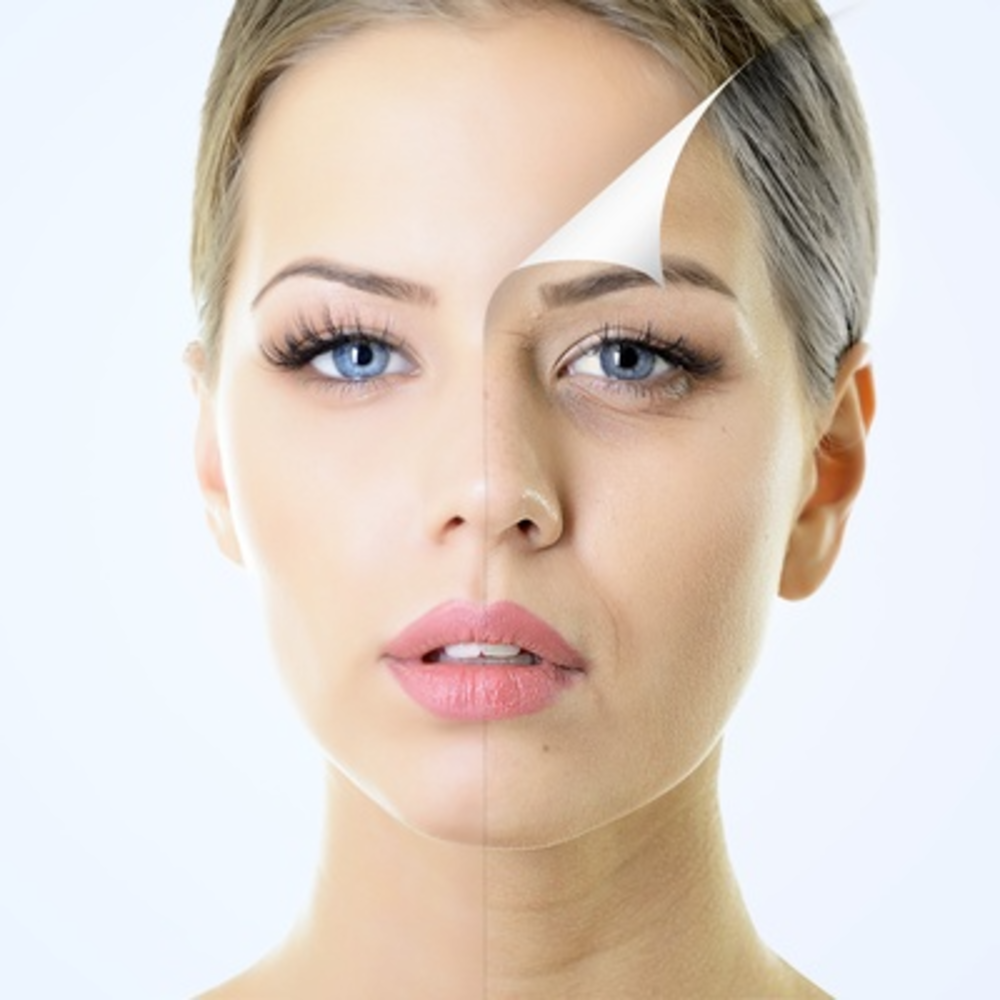 Bell's Palsy and Facial Paralysis