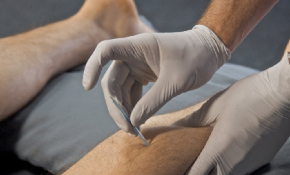 Everything you need to know about Dry Needling