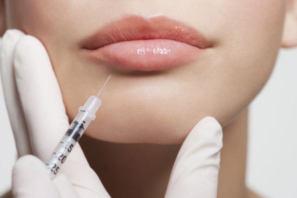 Dermal Fillers for Lips and Face
