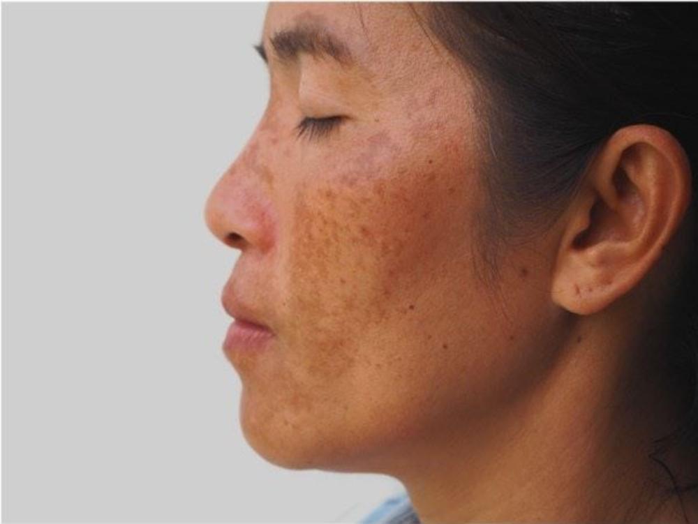 What to know about Melasma on dark skin tones