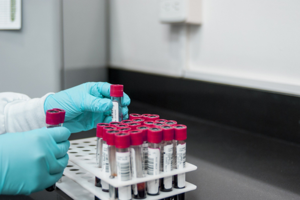 Challenging The Blood Test In A DUI Case – (DUI Blood Alcohol Testing)