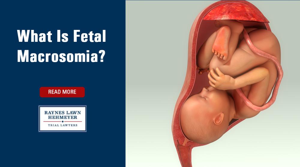 What Is Fetal Macrosomia?