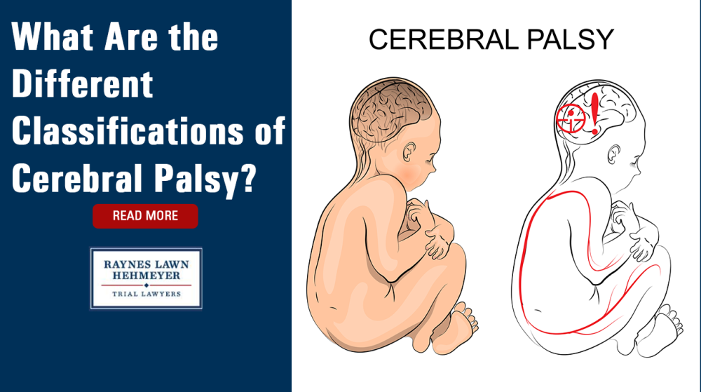 What Are the Different Classifications of Cerebral Palsy?