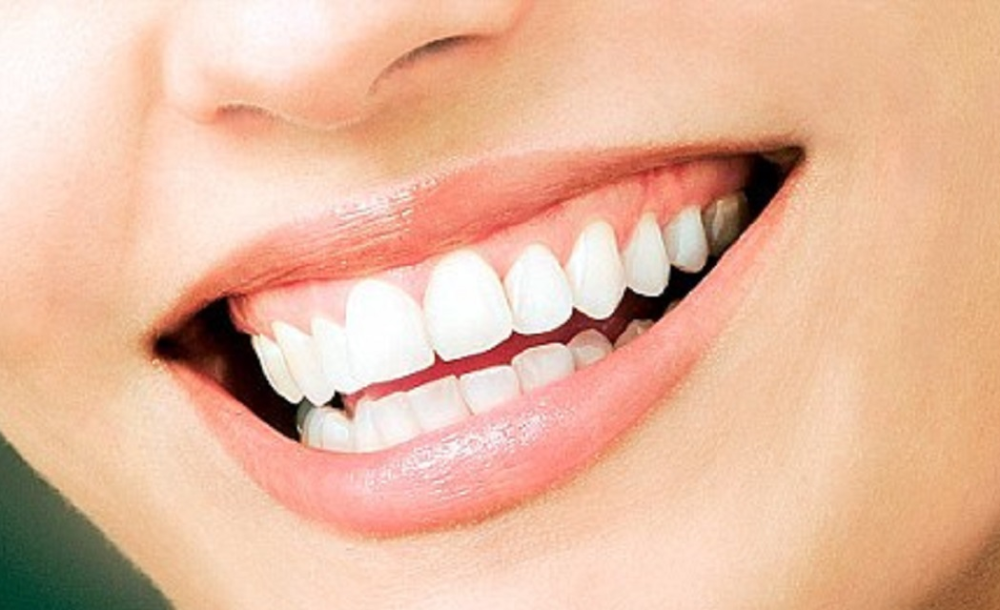 A full mouth dental cleaning with Dr. Behrooz