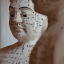 Acupuncture and its origins