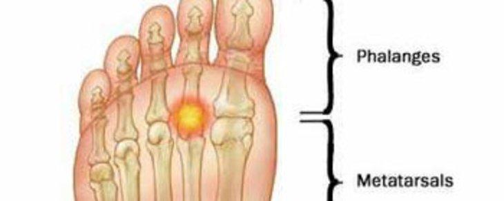 Common Condition of the Foot: Metatarsalgia