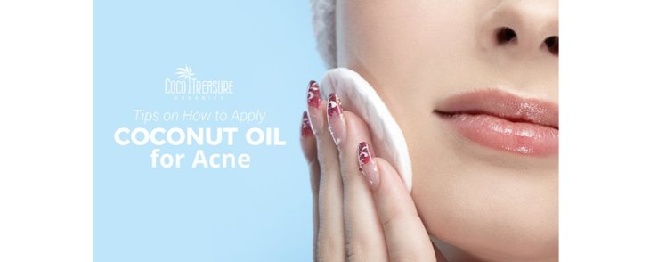 Tips on How to Apply Coconut Oil for Acne