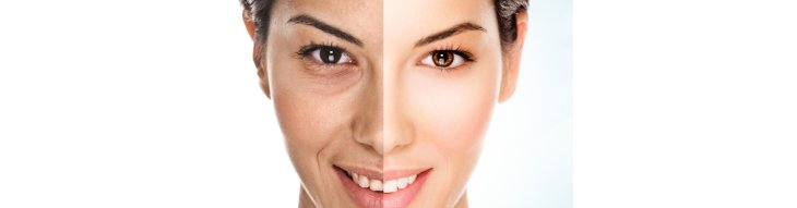 Best solution for post summer sun damaged skin.