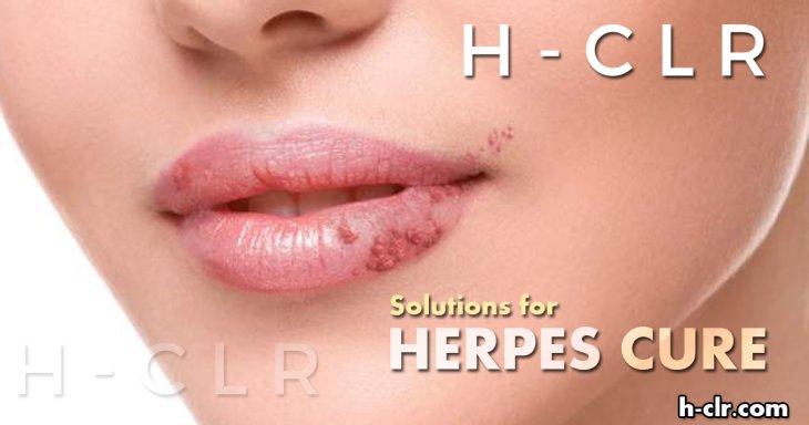Methods for Treatment of Herpes