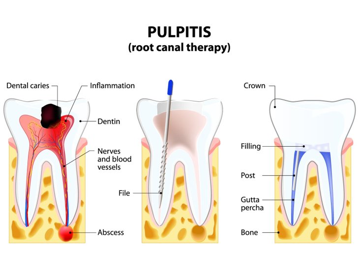 What is a root canal treatment?