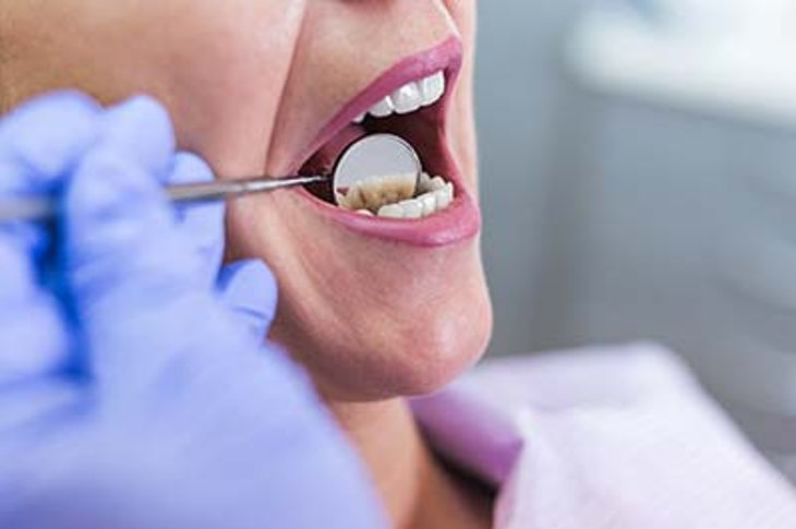 Reasons Why You Should Be Aware of Oral Cancer