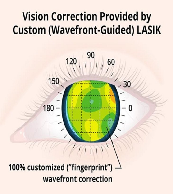 The 5 Things You Need To Know About Lasik Eye Surgery